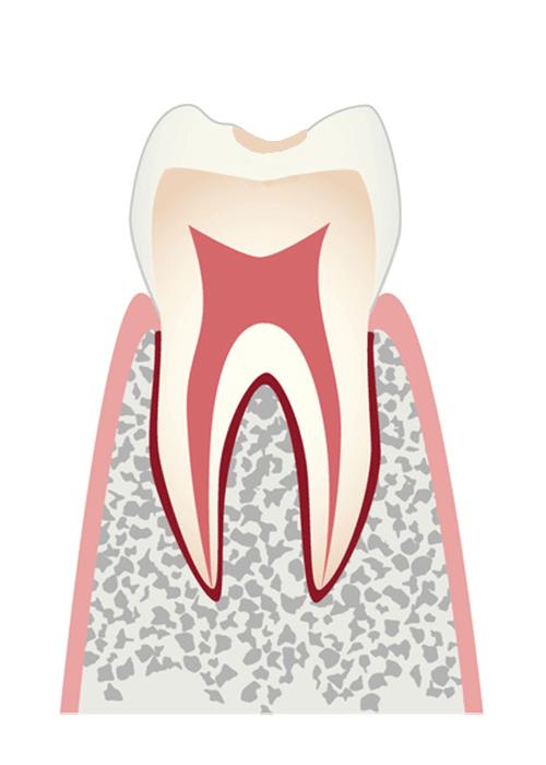 むし歯の前段階