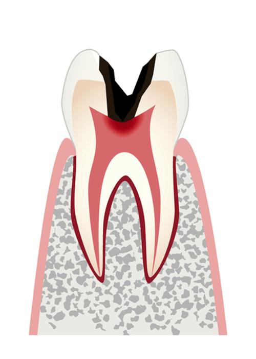 歯の中の神経まで進行したむし歯