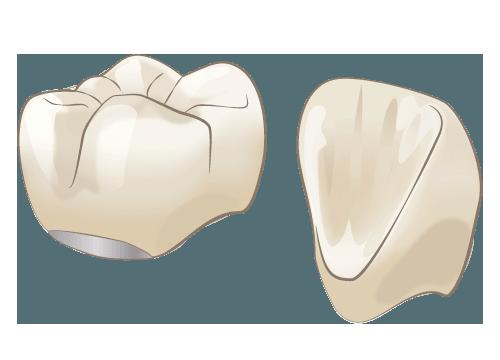 陶材焼付冠(とうざいやきつけかん)